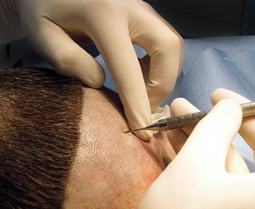 После лазерной эпиляции волосы не выпадают, что делать? ⁄ похудеть. люди помогите! сделала лазерную эпиляцию